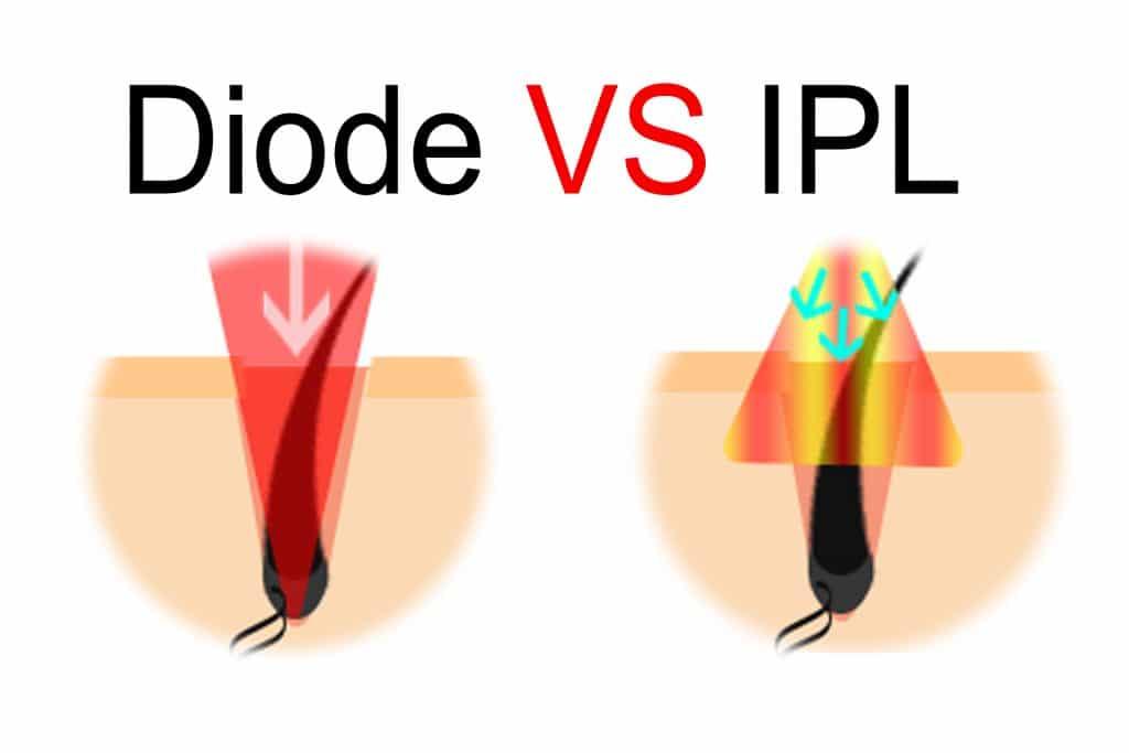 diode vs laser