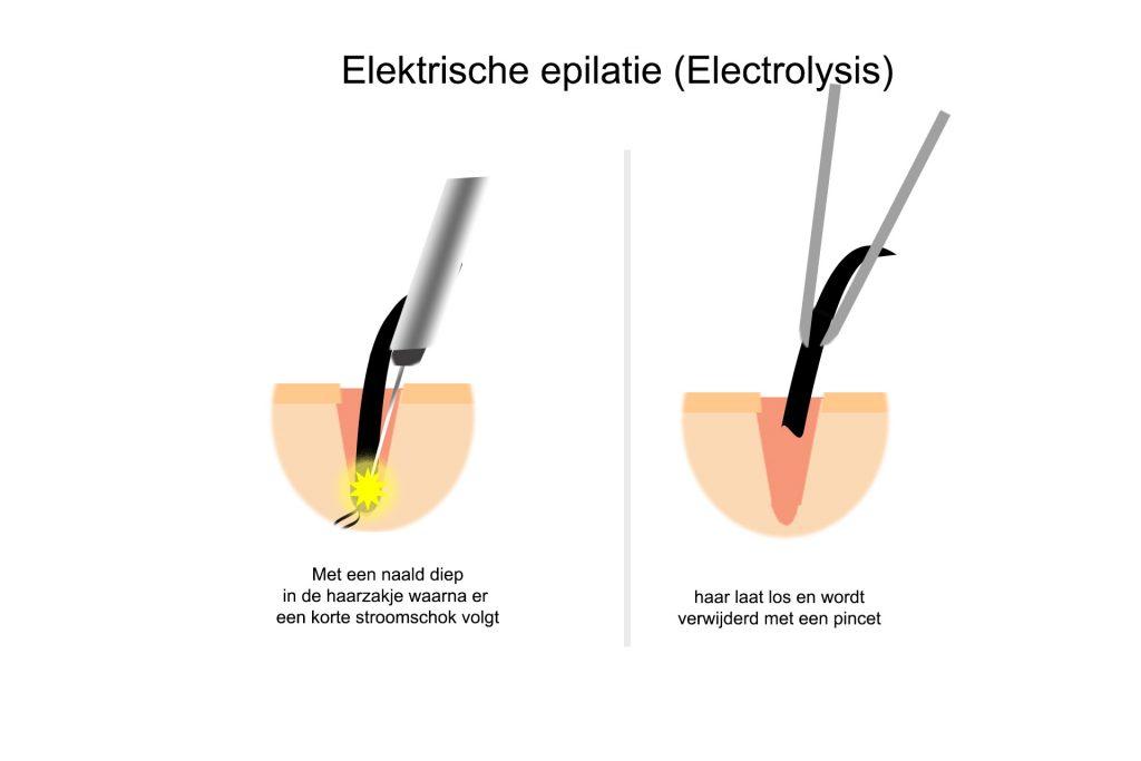 elektrische epilatie
